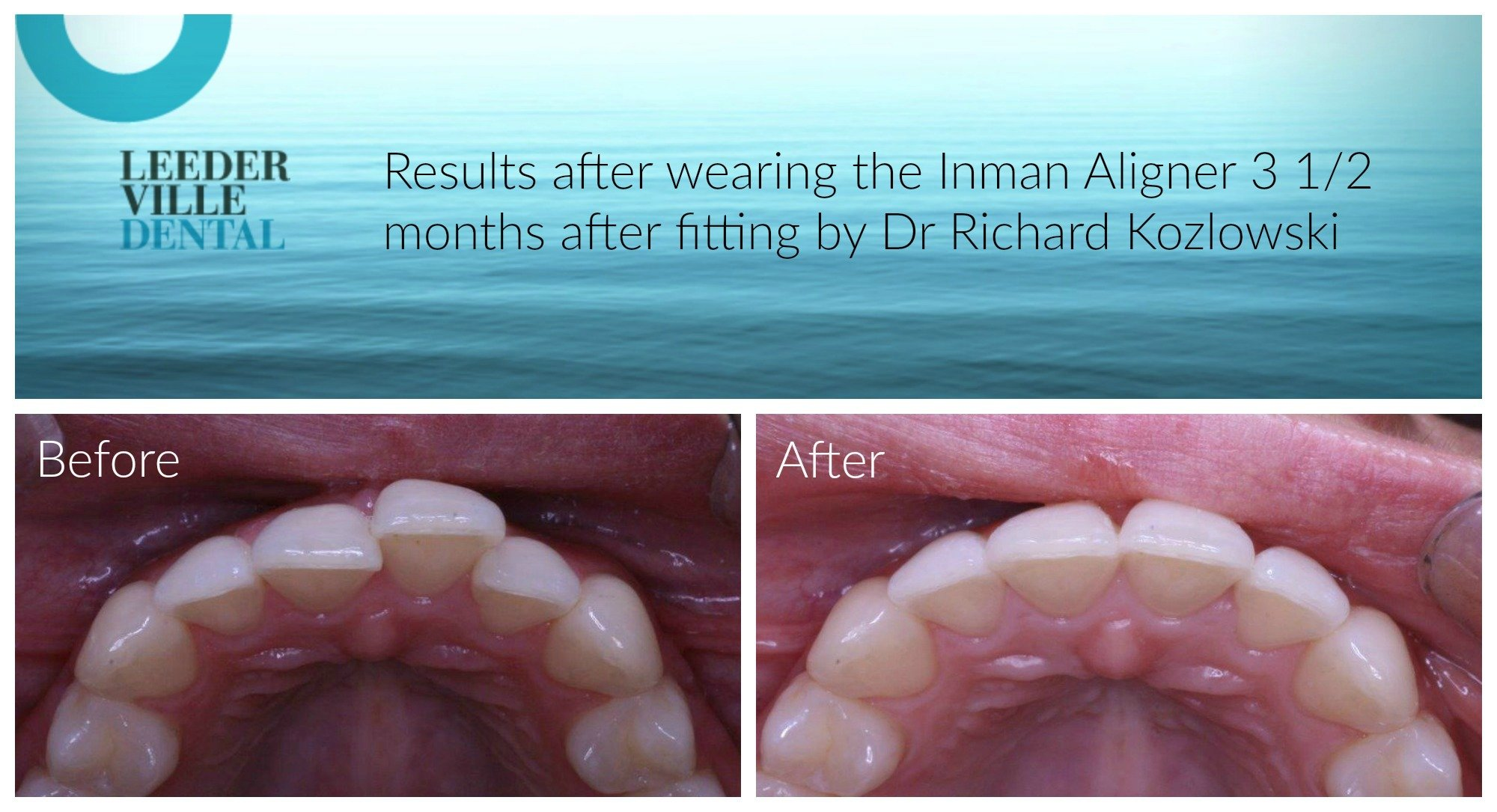 inman aligner results in 3 months