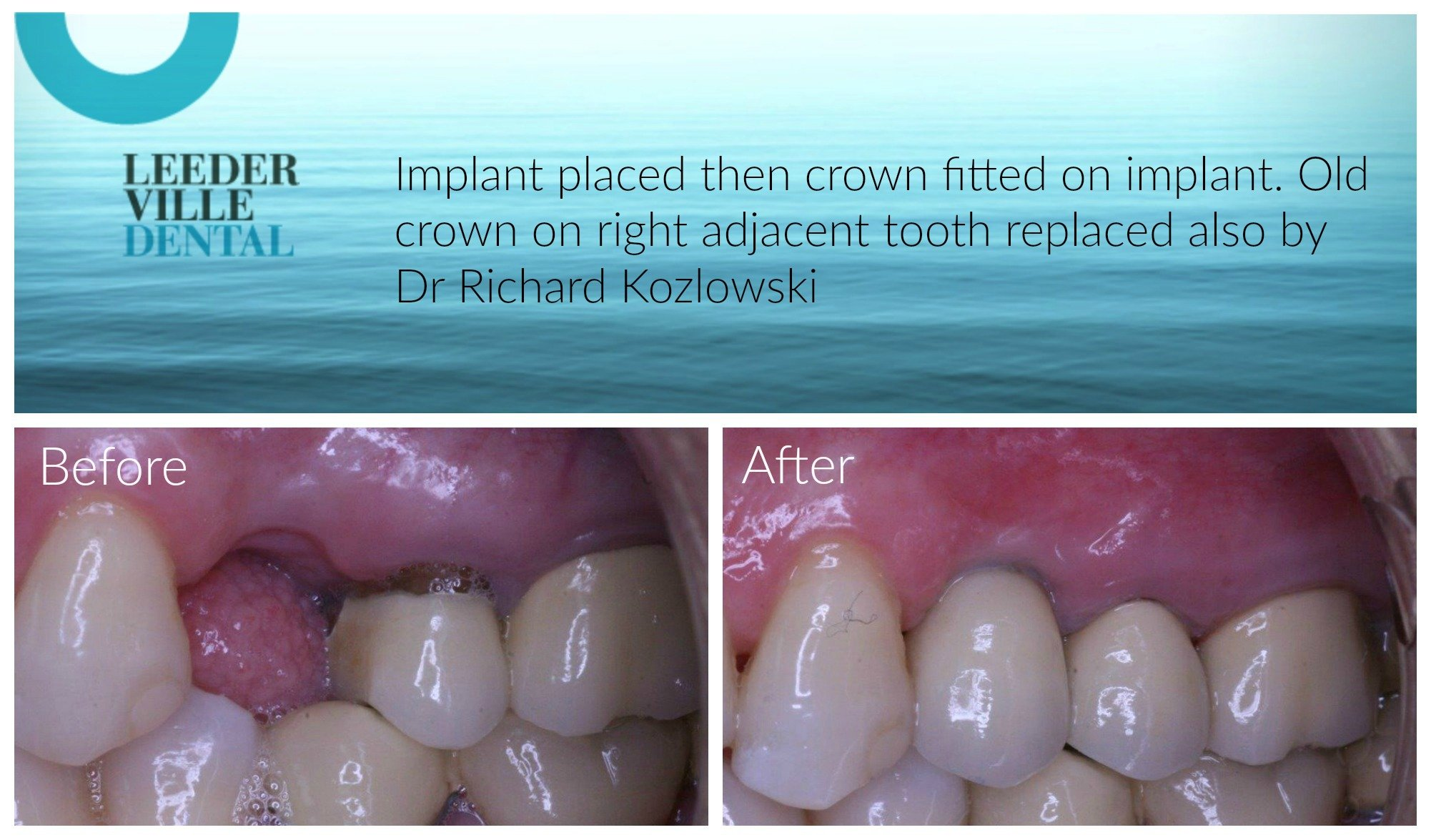 dental implant replaces missing tooth