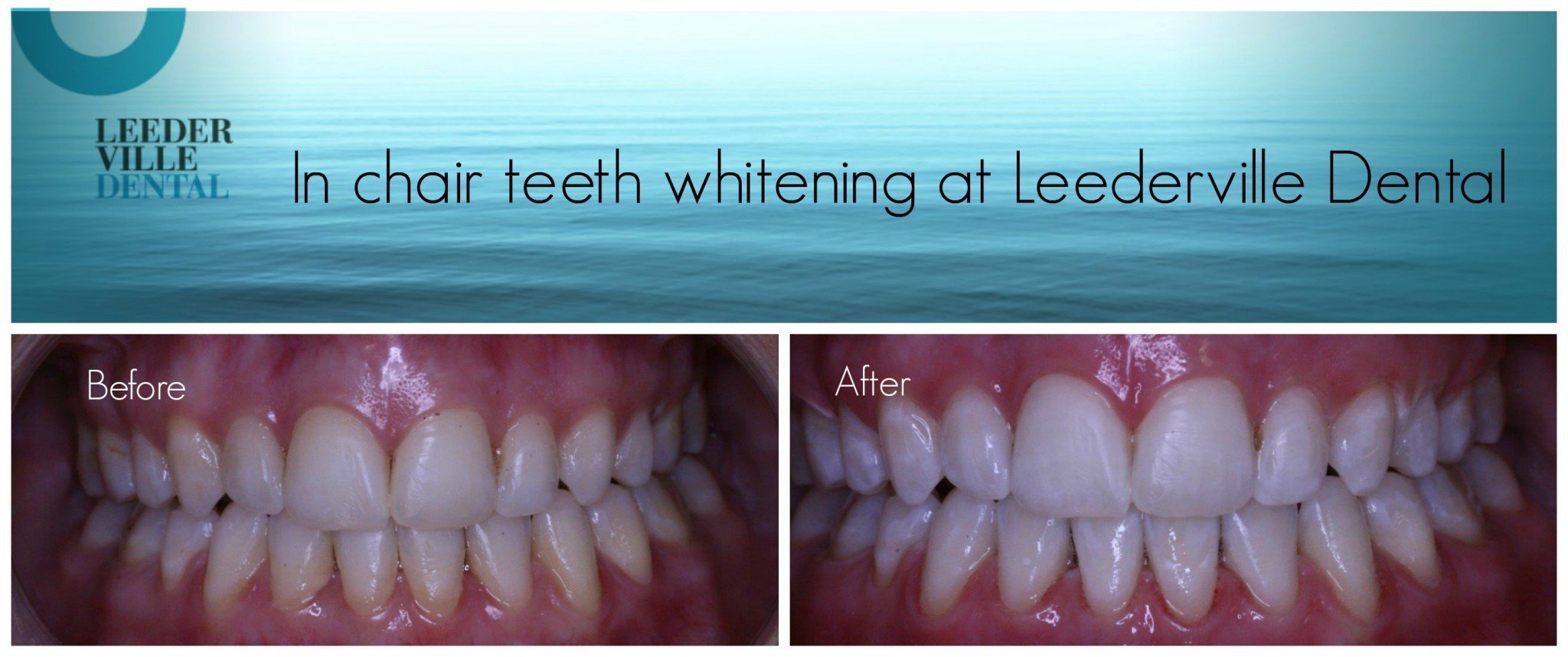 whiter teeth by dentist in perth