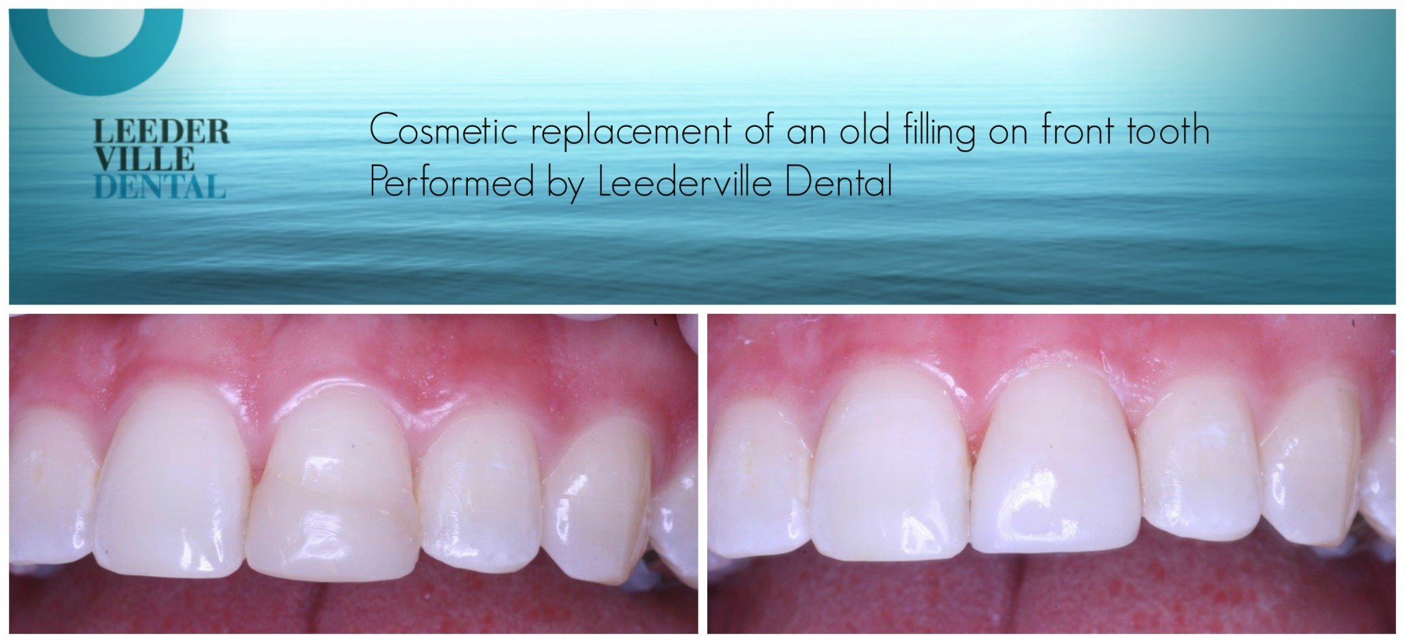 replacement of front tooth filling