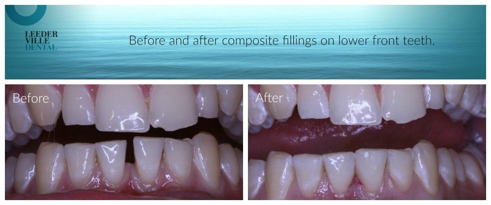 Closing gaps between lower front Teeth using composite fillings
