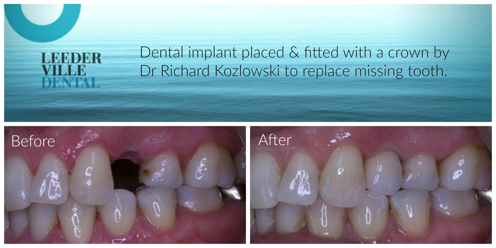 replacement of tooth
