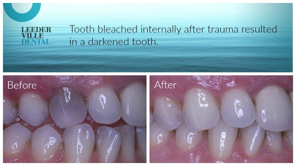 internal tooth bleached