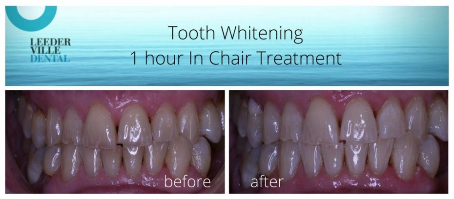 tooth whitening for elderly patient