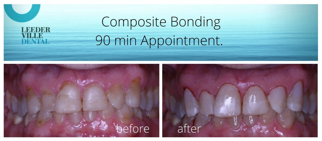 Composite bonding to improve teeth appearance