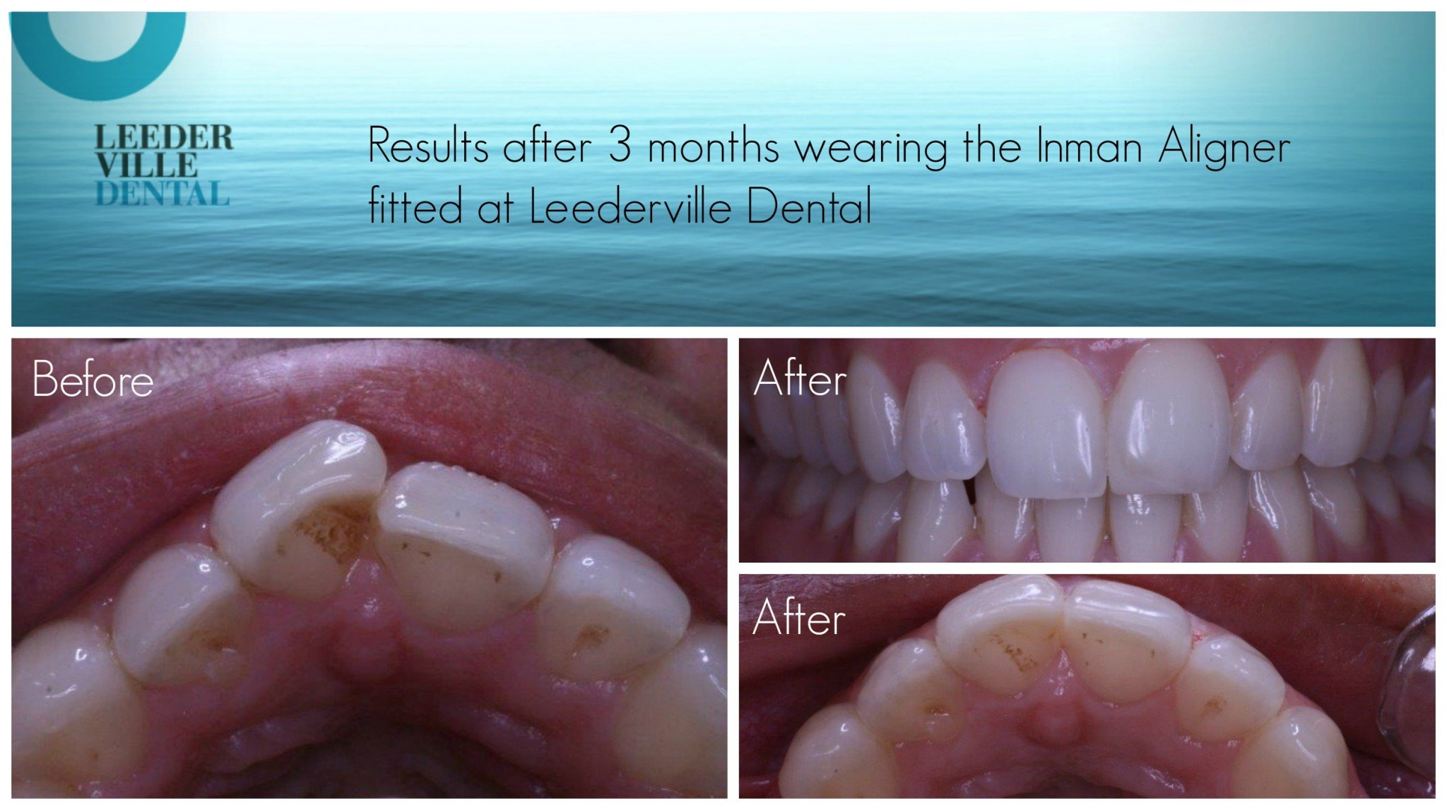 Results after wearing the inman aligner for 3 months after fitting at Leederville Dental. Straighter front teeth