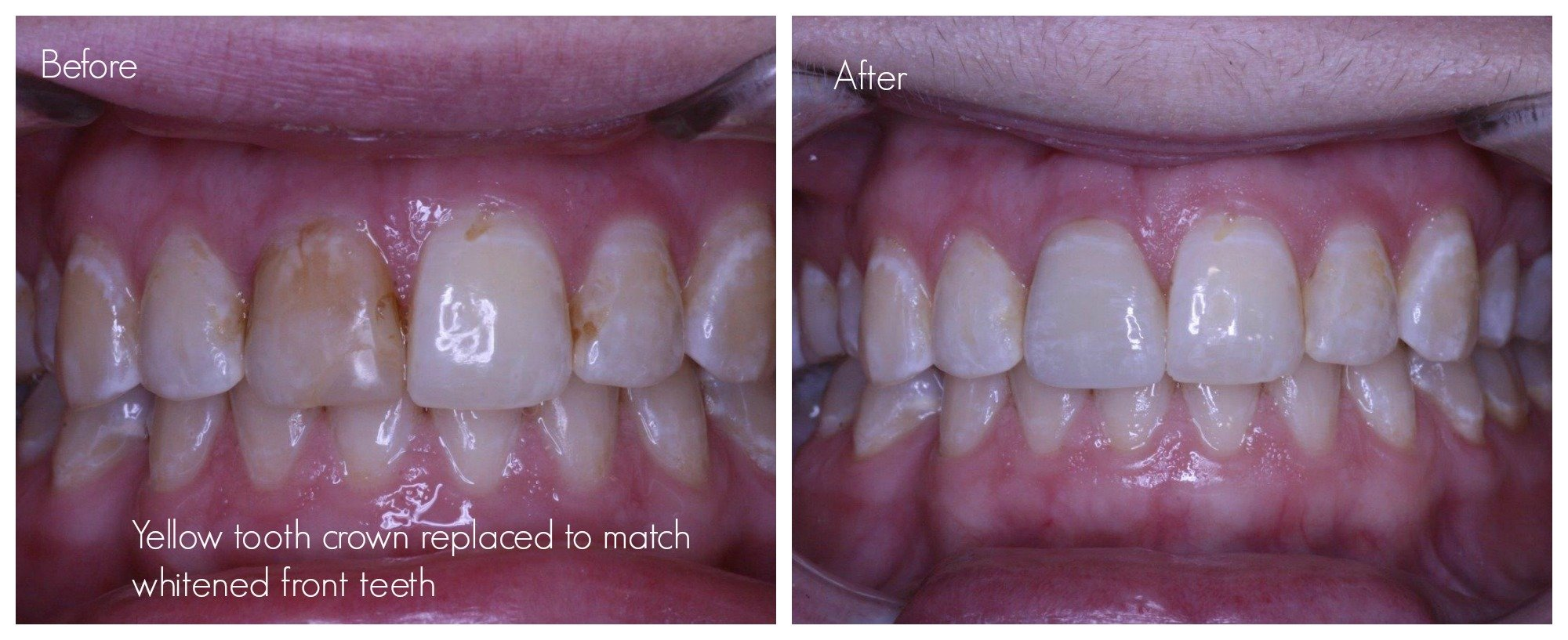 Tooth crown replacement as the colour of tooth crown no longer matches the colour of adjacent teeth