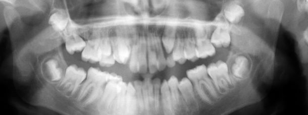 impacted wisdom teeth on teenager