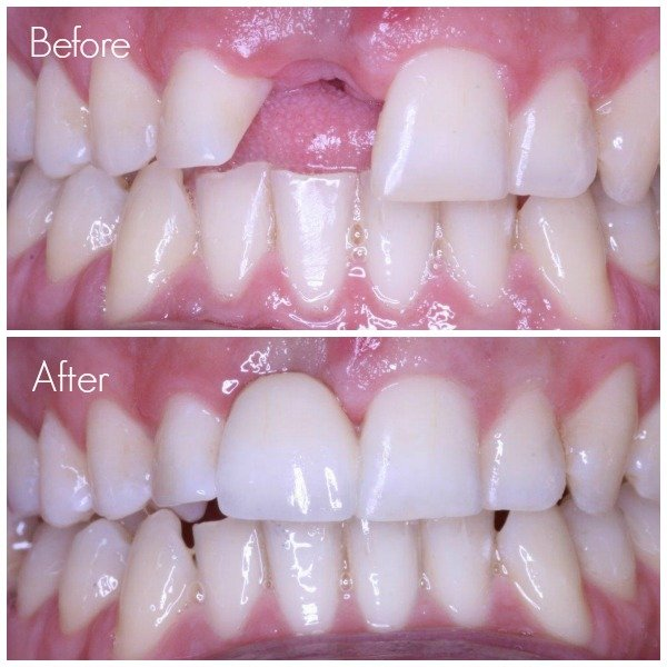 replace missing tooth