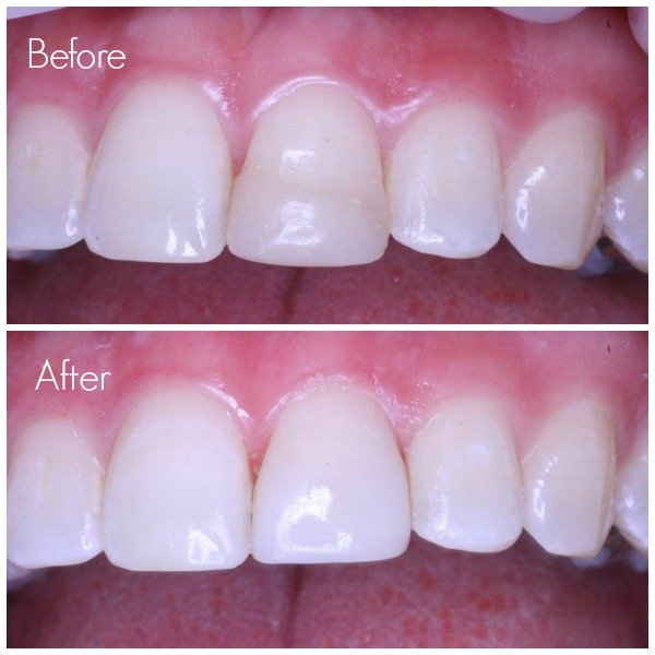 tooth repair with replacement filling