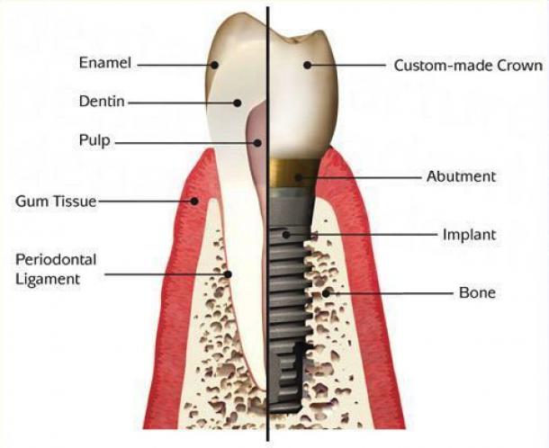 titanium implant with zirconium crown