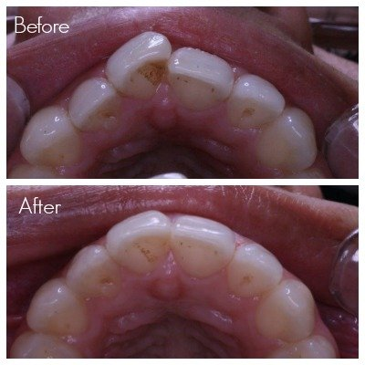 Straighter front teeth after wearing the Inman Aligner for 3 months