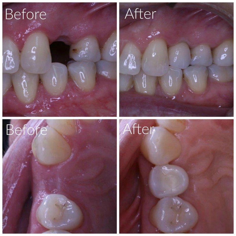 dental implant after