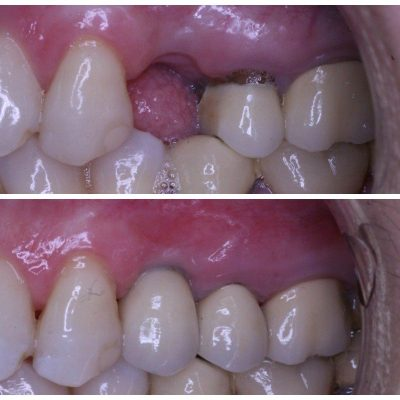 dental implant and crown replacement