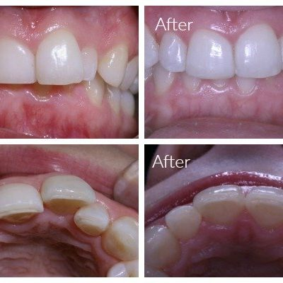 5 months results after Inman Aligner fitted at Leederville Dental by Dr Mary-Clare Walsh.