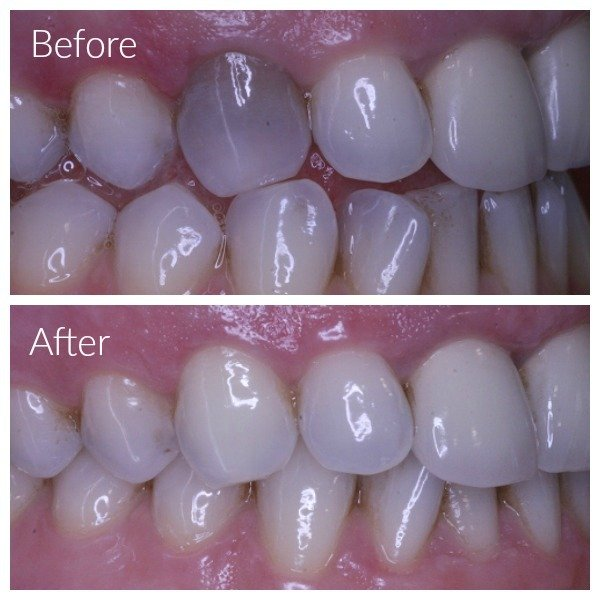 internal tooth bleaching