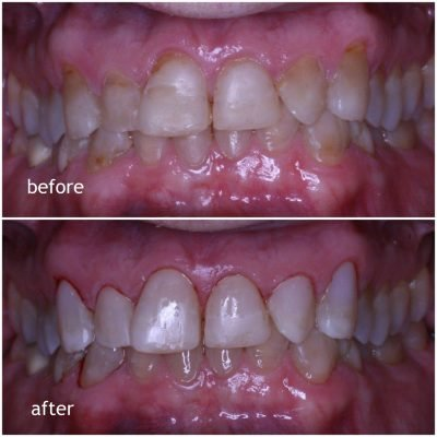 Composite Bonding to Repair Teeth