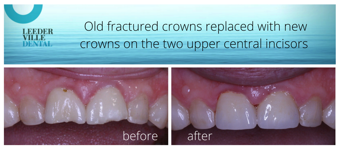 replace old tooth crowns