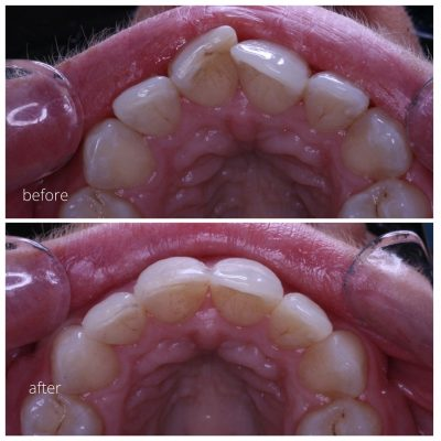 inman aligner results straightens teeth