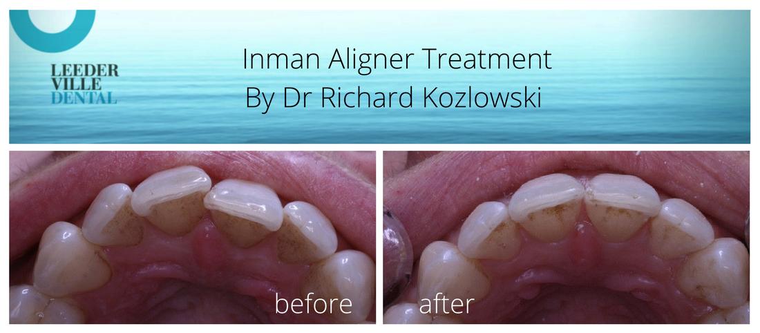 inman aligner perth dentist