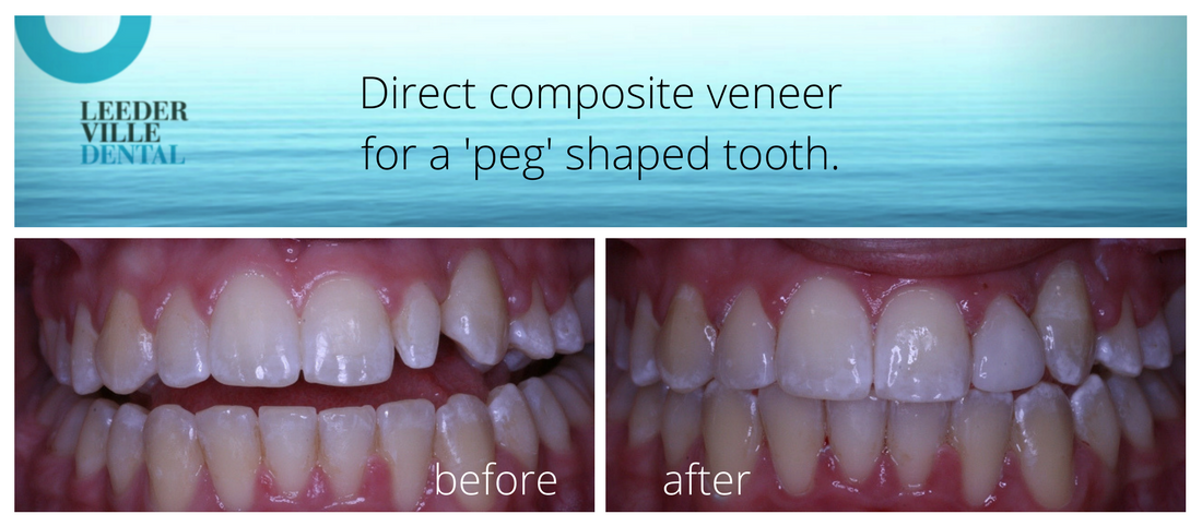 reshape a 'peg' shaped tooth
