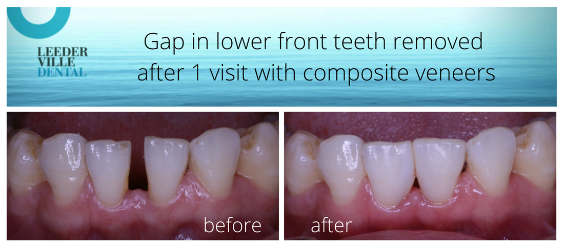 gap in teeth removed