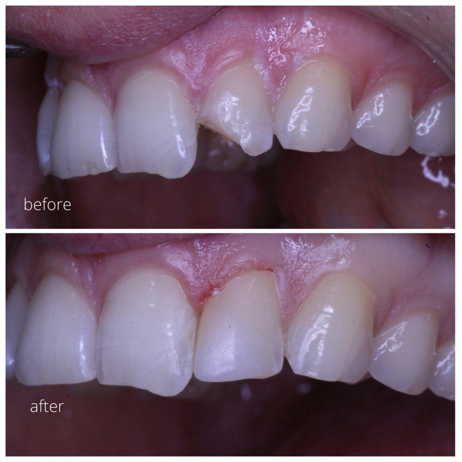 broken tooth after dental trauma