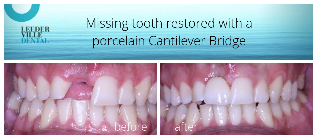 missing tooth replaced with Cantilever Bridge