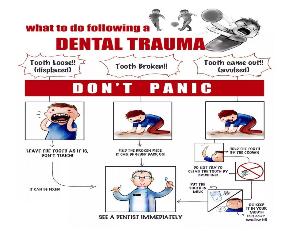 Had an accident to damage your teeth? What to do following dental trauma