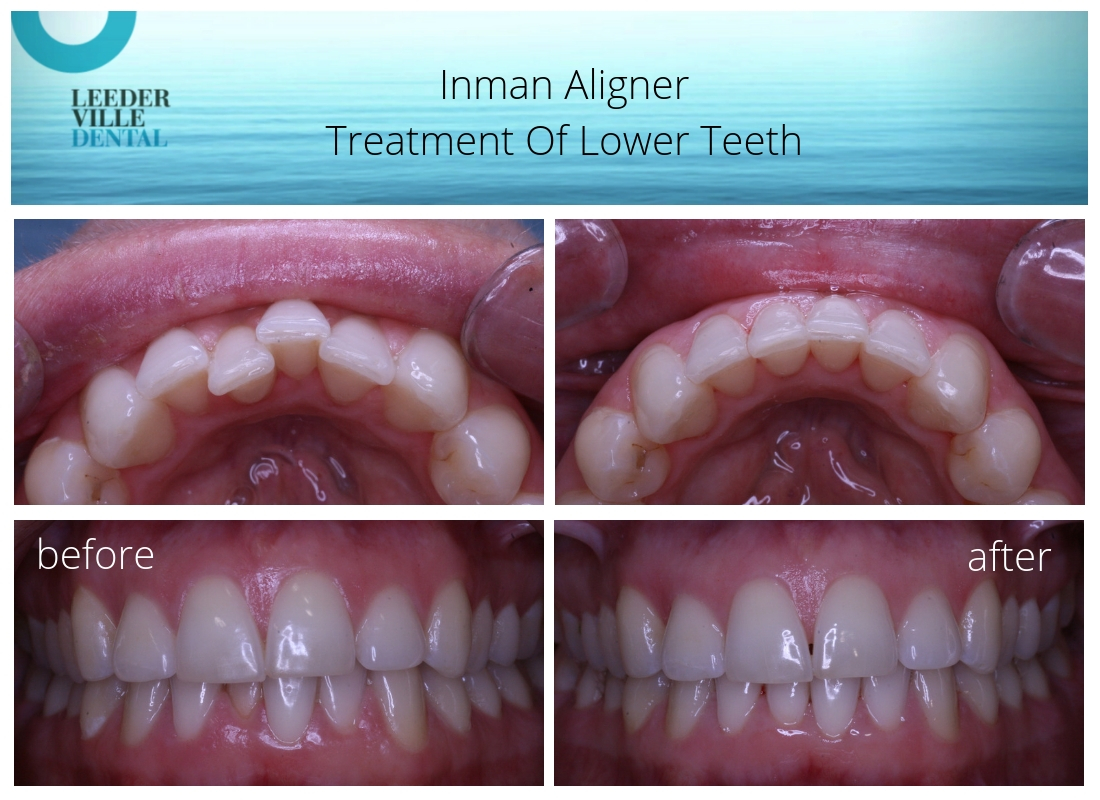 inman aligner lower teeth results