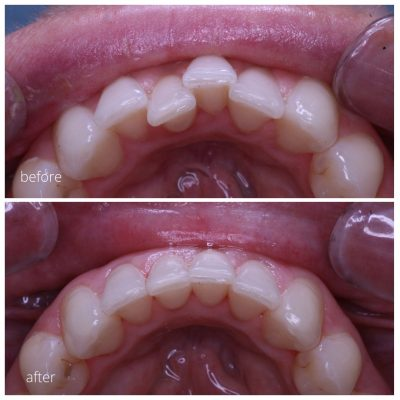 Before and after inman aligner used to straighten lower teeth